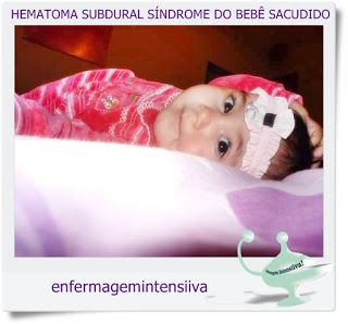 Enfermagem atualizada...: SÍNDROME DO BEBÊ SACUDIDO-SHAKEN BABY SYDROME