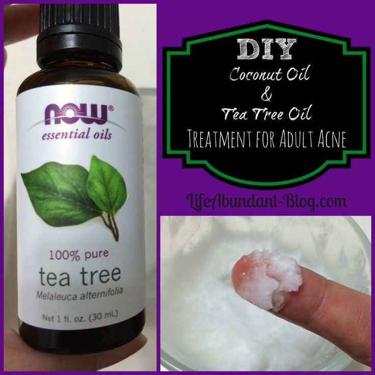 DIY Coconut Oil and Tea Tree Oil Treatment for Adult Acne | http://lifeabundant-blog.com | #coconutoil #essentialoils