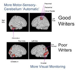 Eide Neurolearning Blog: fMRI of Dysgraphia - Lack of Automaticity and Need for Visual Monitoring