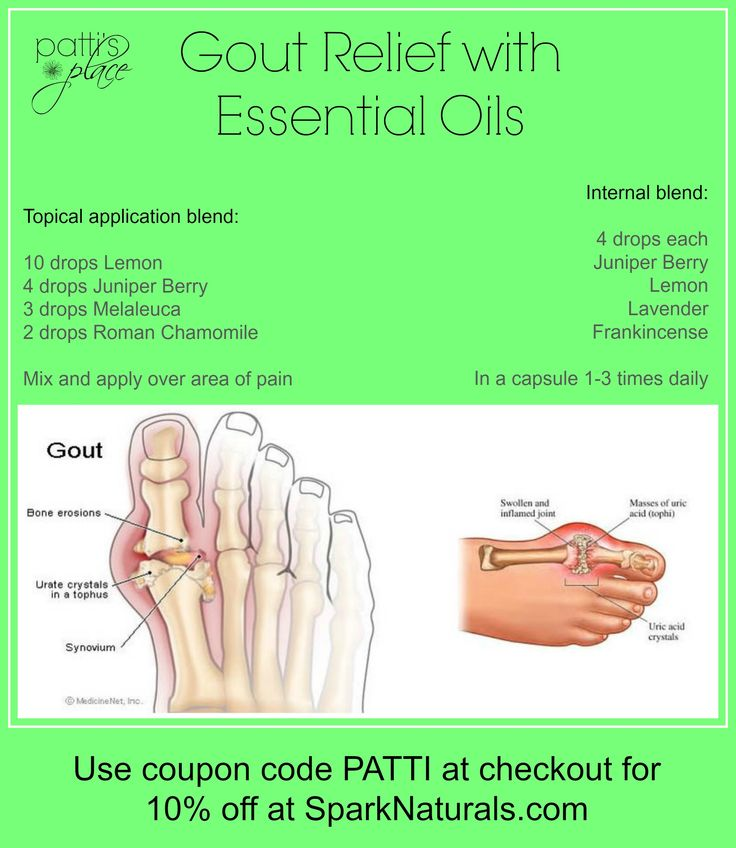 Gout relief with essential oils patti 39 s place for Fish oil gout