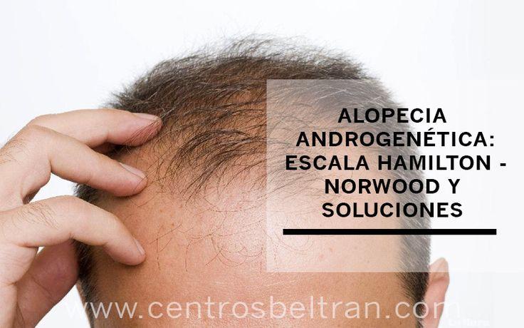 Alopecia androgenética: escala de Hamilton-Norwood y soluciones