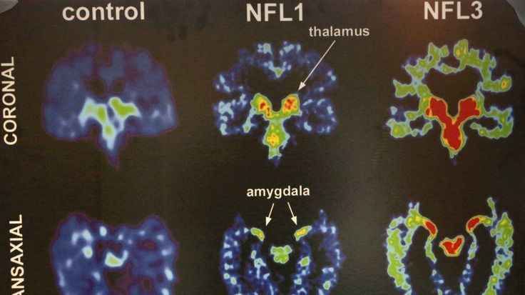 Diagnostic Imaging Services shares a news report on the confirmation of Chronic Traumatic Encephalopathy (CTE) in a living person, an ex-NFL player who passed away two years ago. #DISNOLA