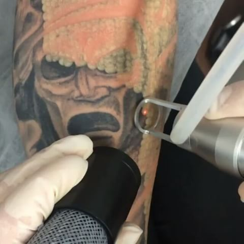 22 best tattoo removal by south west laser removal and mj for Getting a tattoo removed