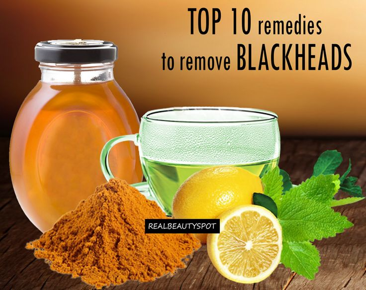 Top 10 Remedies to Remove Blackheads via theindianspot *you probably already have these DIY ingredients in your kitchen**