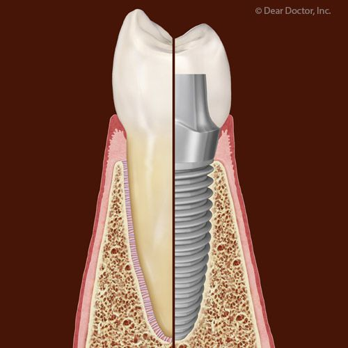 Although Rare Dental Implant Failures Are Tied to Certain Health Factors