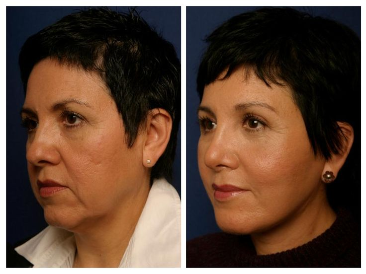 026 Before and after facelift, cheek lift, forehead lift, chin implant and rhinoplasty revision