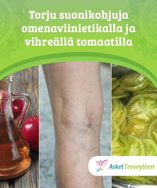 Torju suonikohjuja omenaviinietikalla ja vihreällä tomaatilla  Tämä on tunnettu hoito sen rauhoittavan ja tulehtuneisuutta estävän vaikutuksen vuoksi - nämä ovat avainasiat, jotta voisit lievittää kyseistä ongelmaa.