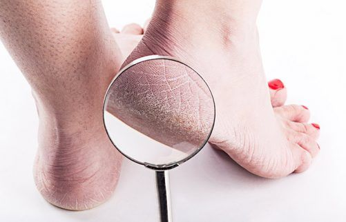 5. For Treating Cracked Heels