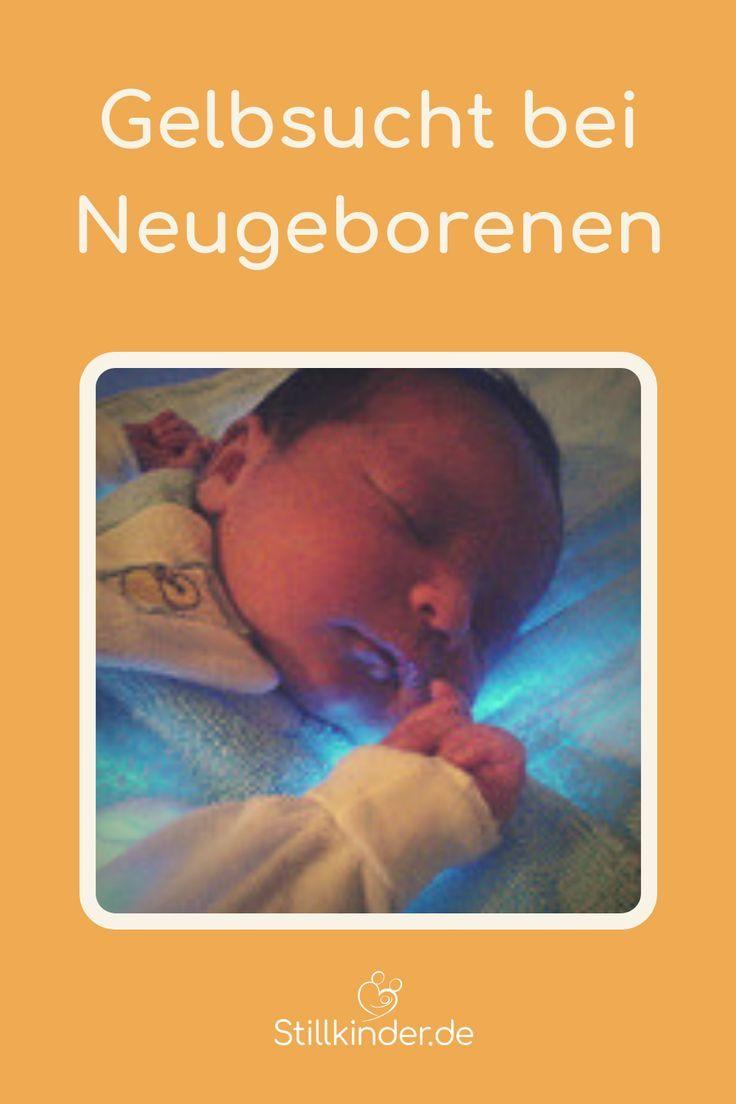 Gelbsucht Bei Neugeborenen In 2020 Gelbsucht Neugeborene Kinder Und Elternschaft