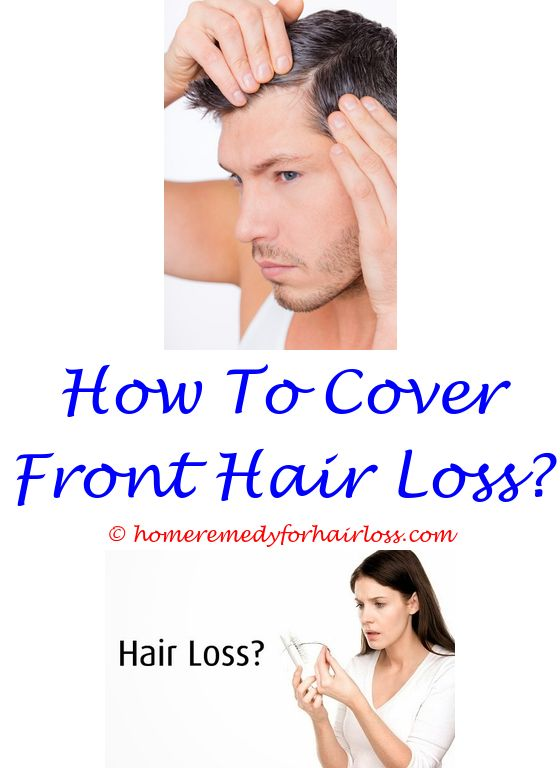 17 best Hair Loss Solution images on Pinterest | Hair loss cure ...