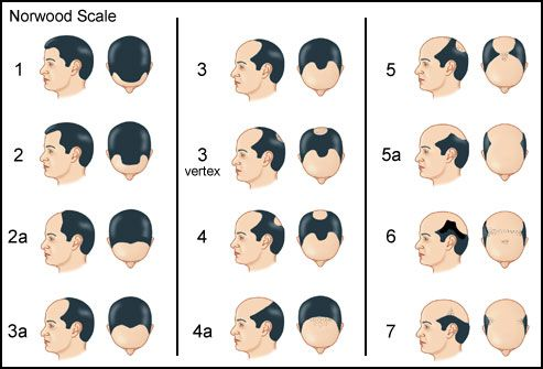 Male-Pattern Baldness: What to Expect A receding, M-shaped hairline is a sure sign of it. Next, the locks on top of your head also start to thin, leaving a bald spot. Eventually, the two meet and you're down to a horseshoe pattern of hair around the sides. The Norwood Scale, seen here, is used to rate male-pattern baldness.