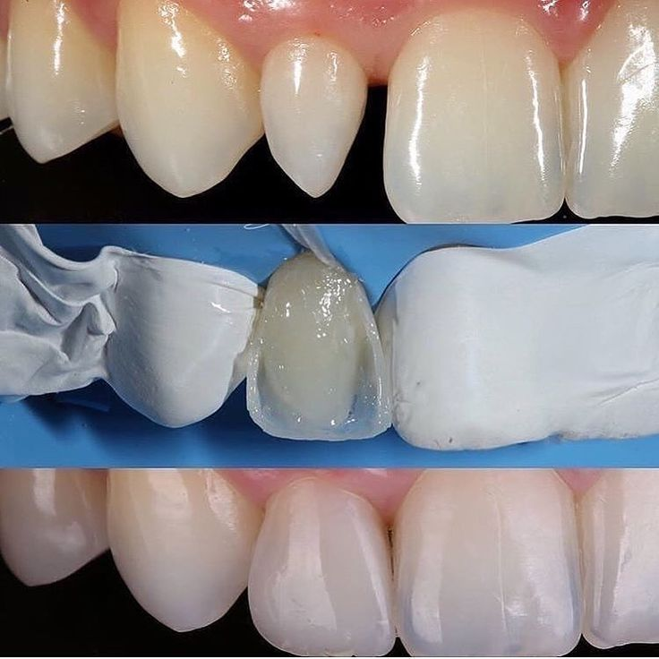 Restoration to change the shape of the lateral! Would you do it too Tag a friend @viraldentist       #teeth #dental #odontologia #dentistry #braces #dentalschool #dentalassistant #dentalhygienist #dentalhygieneschool #teethwhitening #cosmeticdentistry #cosmeticsurgery #toothfairy #implants #dentures #rootcanal #odonto #smile #whiteteeth #cavity #cavityfree by unknown