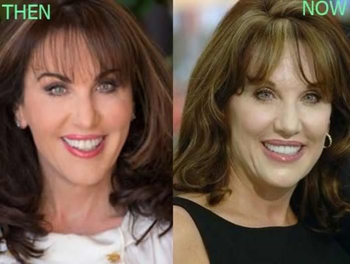 Robin McGraw Facial Plastic Surgery