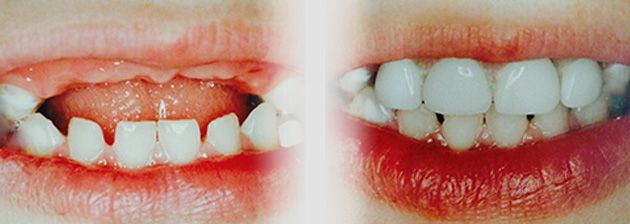 Dr. Barry Jacobson is a pioneer in treating Baby Bottle Tooth Decay and Baby Bottle Rot please read more about our treatment and Baby Bottle Toddler Feeding Tips.