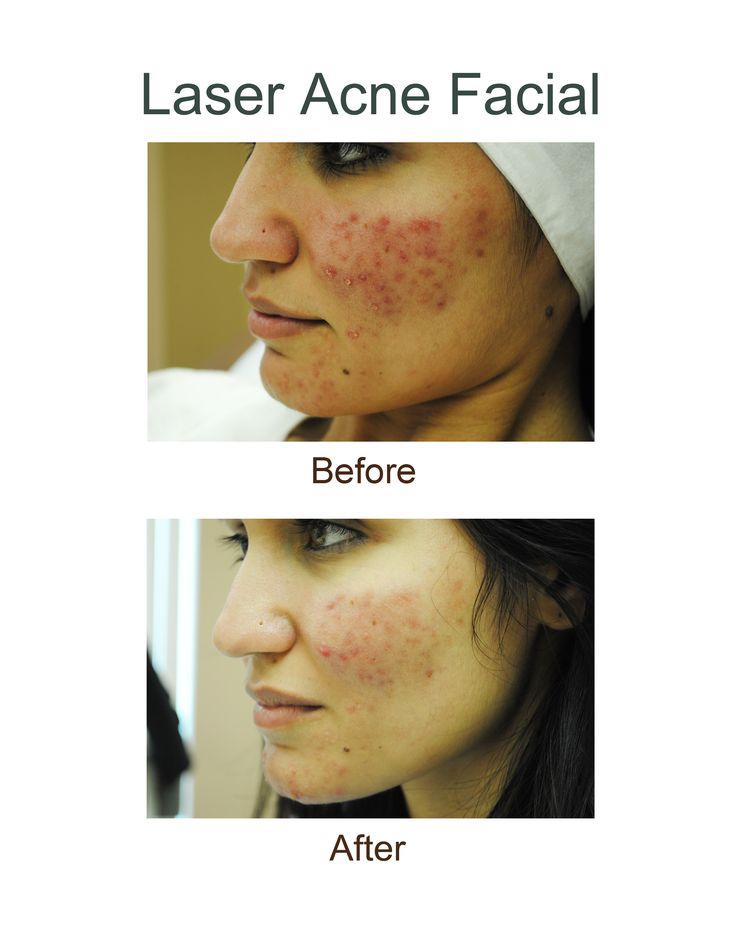 Before and after photo results from a Laser Acne Facial ...