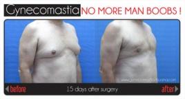 Photo Gallery - Gynecomastia Surgery - Reducción de pectorales a través de una ginecomastia o liposuccion de pectoral