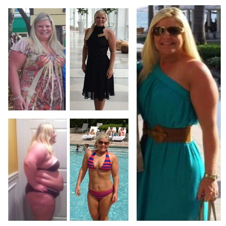 Gastric before sleeve after pictures and