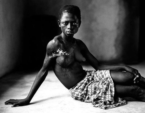 A 12-year-old victim of the Revolutionary United Front (RUF) was taken from her village at ten and forced into sexual servitude. When she attempted to escape they used battery acid to burn off her breast as an example to the other slaves. Photographer: Brent Stirton #brentstirton #photojournalism via Oneshot on Instagram - #photographer #photography #photo #instapic #instagram #photofreak #photolover #nikon #canon #leica #hasselblad #polaroid #shutterbug #camera #dslr #visualarts…