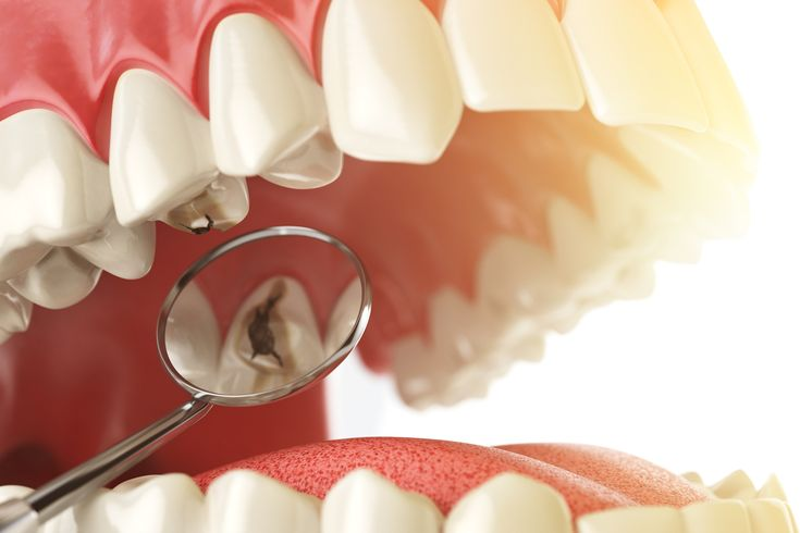 Your #dentures should last for a number of years if you take good care of them. If you have dentures, you should continue visiting your dentist on a regular basis so that you can check for any problems.