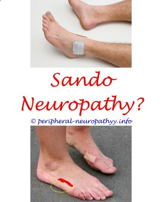 amputations with peripheral neuropathy - vit b6 f or neuropathy.post viral infection neuropathy alcoholic neuropathy icd 10 diabetic neuropathy obesiety 9719850057