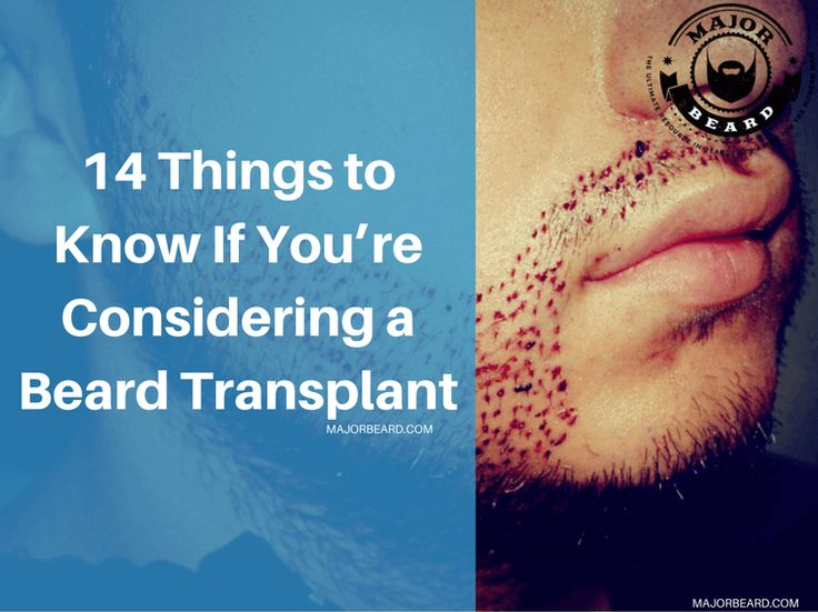 14 Things to Know If You're Considering a Beard Transplant