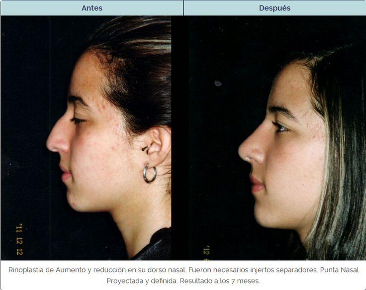 Rinoplastia con descuentos por cirujanos certificados por la Sociedad Colombiana…