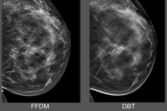 GE Gets FDA Approval for 3-D Mammogram Machine #CMIEvo