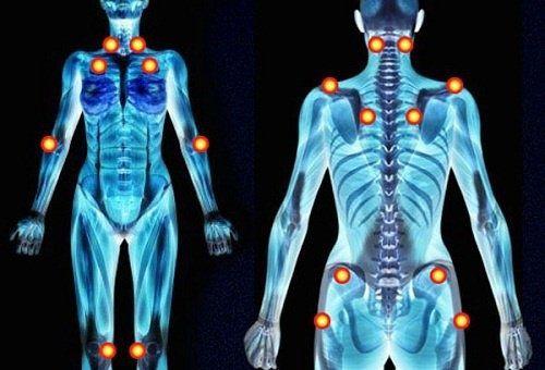 Fibromyalgie - mysteriöse Schmerzen - Besser Gesund Leben
