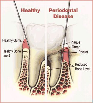 Gum Infection and Diseases Treatment Sydney | Types of Gum Disease
