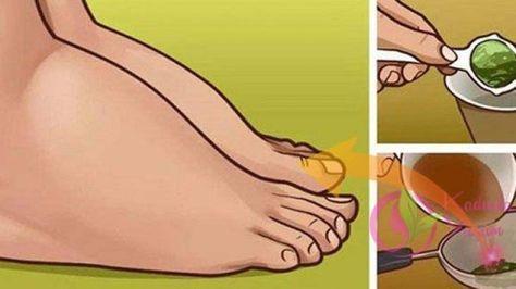 Su tutma, sıklıkla ayakların ve gövdenin şişmesinden dolayı ağrıya neden olur ve bunu yaşarsanız, çok rahatsız edici ve acı vericidir. Su tutma, tıpta ödem olarak bilinir ve aslında çeşitli nedenlerden ötürü vücutta aşırı sıvılar birikimi oluşur