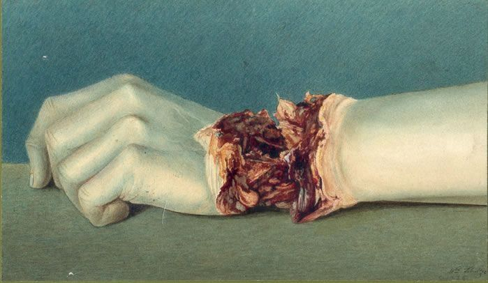 dünne Knochen : Photo