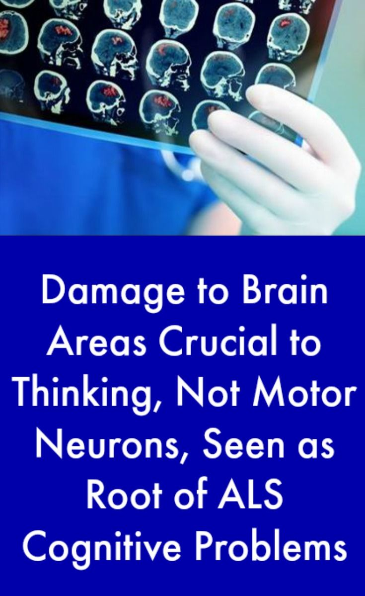 The 25 best motor neuron ideas on pinterest pre primary als cognitive problems linked to brain not motor neuron damage in study robcynllc Choice Image