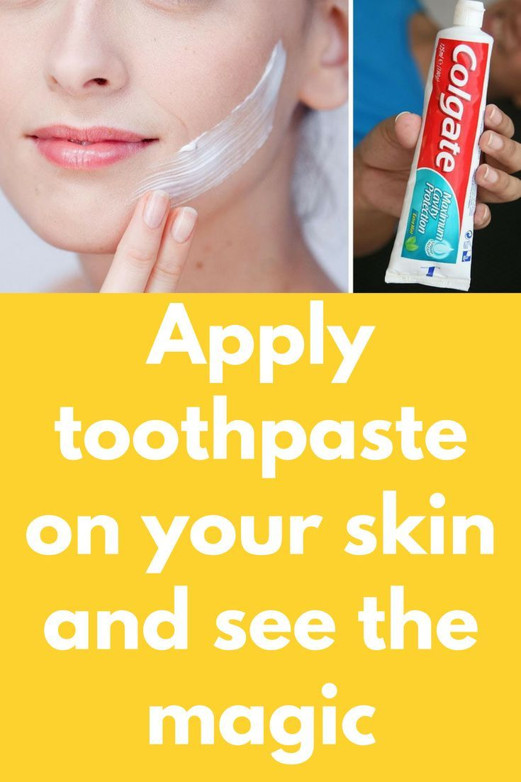 Apply toothpaste on your skin and see the magic Today I am going to tell  you an amazing beauty trick that can rellay giv… | Toothpaste pimple,  Pimples, Beauty hacks