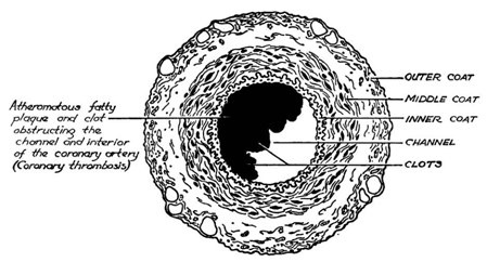 artery cross section diagram labelled