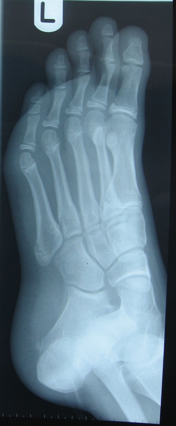 #ScienceSnaps 48: Fractured 5th Metatarsal Photo credit: (Wendy Smith) Location: Glasgow Caledonian University