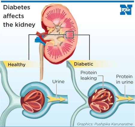 Diabetes Medical Definition