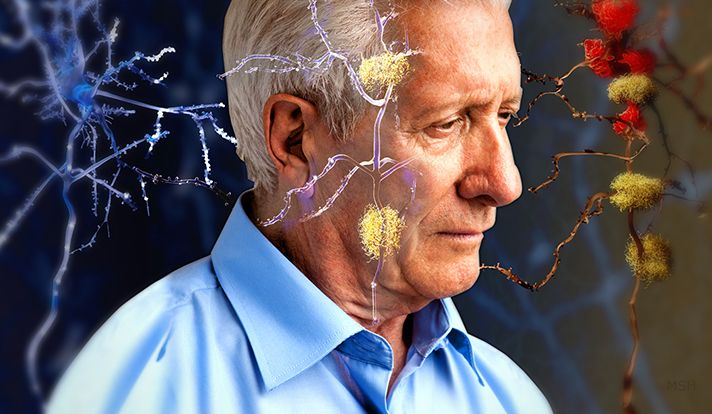 Newly published research led by the Yale School of Public Health demonstrates that individuals who hold negative beliefs about aging are more likely to have brain changes associated with Alzheimer's d