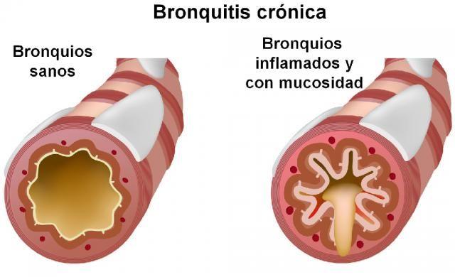 Enfermedades Respiratorias Youbioit Com Enfermedades Respiratorias Bronquitis Bronquitis Crónica
