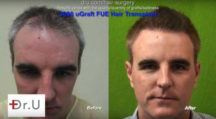 Why go anywhere else for a natural frontal hairline transplant, when you can go to Dr U for your very first surgery? After just 12 months, this patient was astonished with the amount of coverage provided by his nape and head hair UGraft FUE surgery by Dr U.   #hairlinerestoration #temple #napetransplant #12months #results #beforeandafter #FUE