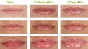 A Good Way To Get Rid Of Spots - Visit http://www.pricecanvas.com/health/lip-plumper/ For Lip Plumper.