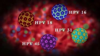 HPV Vaccination of Adolescent Boys May Be Cost-Effective for Preventing Oropharyngeal Cancer