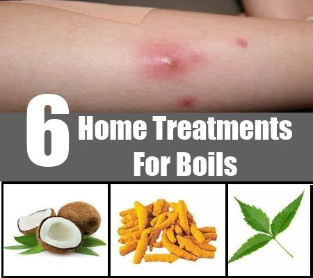 Boil Home Remedy Treatment - Visit http://www.dailygate.org/boils-relief/boil-home-remedy-treatment/