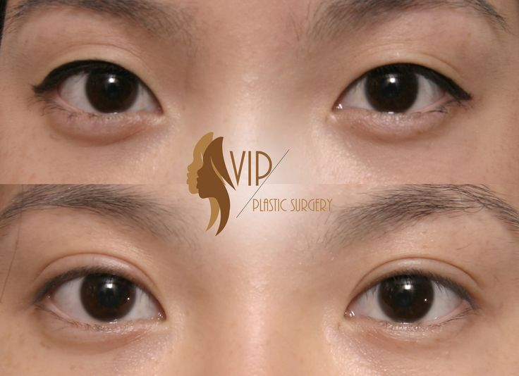Incisional Asian Upper Blepharoplasty by VIP Plastic