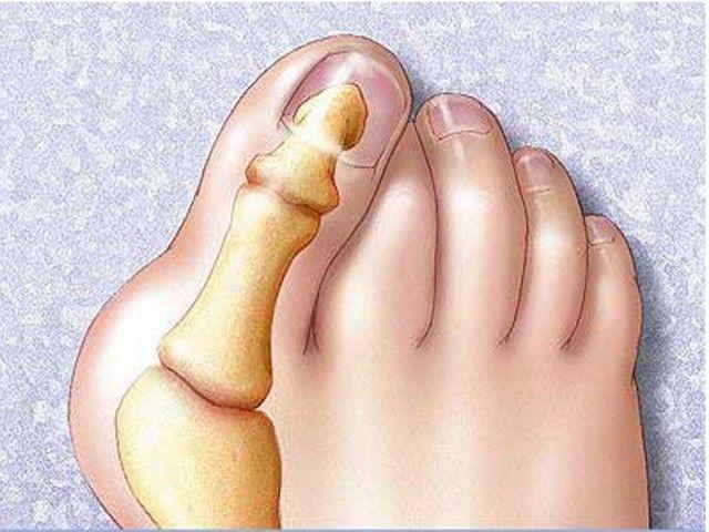 8 натуральных средств, которые помогут вылечить косточку на ноге