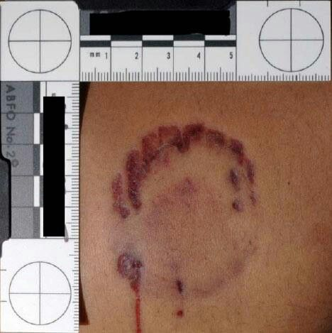 The bite mark that led to Ted Bundy's conviction. Pure lunatic. He caused me to take an interest in learning about how wacko minds work, considering he was so close to home.