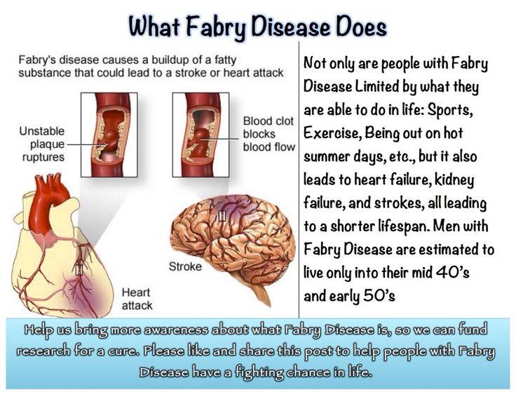 Fabry Disease