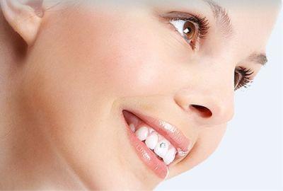 Công nghệ niềng răng không mắc cài tốt nhất hiện nay