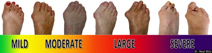 What are the most common foot problems that cause foot pain ? Athlete's Foot or Dermatitis- is an infection that is caused by various types of fungus Bunions- Are caused by your big toe joints becoming incorrectly aligned. Chronic Wounds – Are open sores known as ulcers that can become seriously infected, gangrenous, and in some cases necessitate amputation Corns and Calluses- Are frequently symptoms or other foot conditions. Diabetic Neuropathy- Is characterized by numbness and lack of…