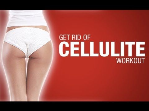 how to get rid of cellulite workout