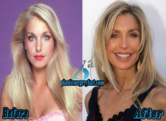Heather Thomas Plastic Surgery Before and After | http://plasticsurgeryfact.com/heather-thomas-plastic-surgery-before-and-after/